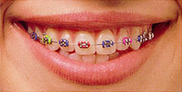 Orthodontic Braces Colored Ties on Brackets