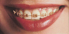 Orthodontic Gold Metal Brackets