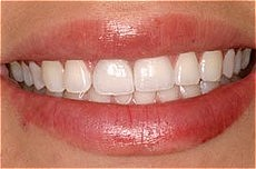 Plaza Dental Center crowns after