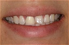 Plaza Dental Center crowns before