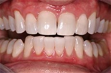 Plaza Dental Center After Bleaching