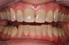 Plaza Dental Center Before Bleaching