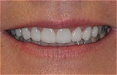 Plaza Dental Center veneers after